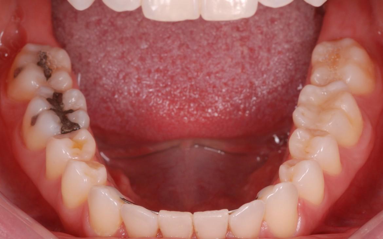 figura 2 - Arcada inferior seca e lábios afastados