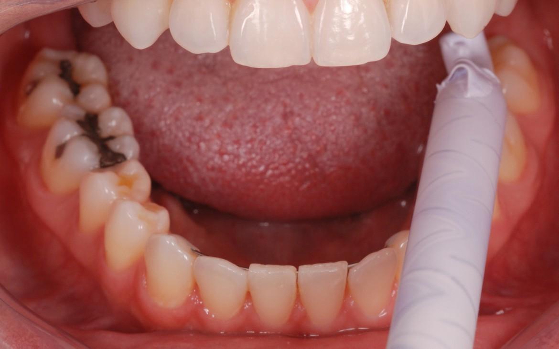 figura 3 - Variotime Bite sendo dispensado sobre a face oclusal e incisal dos dentes inferiores
