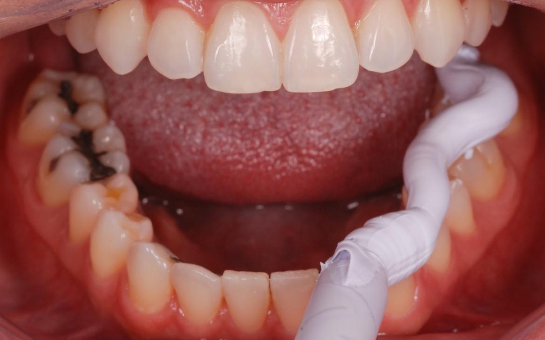 figura 4 -Variotime Bite sendo dispensado sobre a face oclusal e incisal dos dentes inferiores