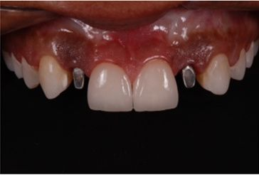 Microlaminados-reabilitacao-estetica-12