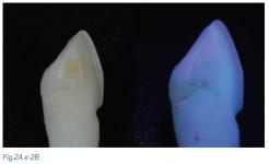 fluorescência nas cerâmicas dentais 3