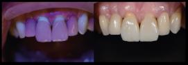 fluorescência nas cerâmicas dentais 7