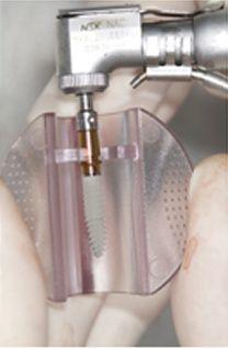 Microlaminados-reabilitacao-estetica-5