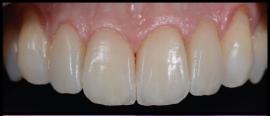 fluorescência nas cerâmicas dentais 5