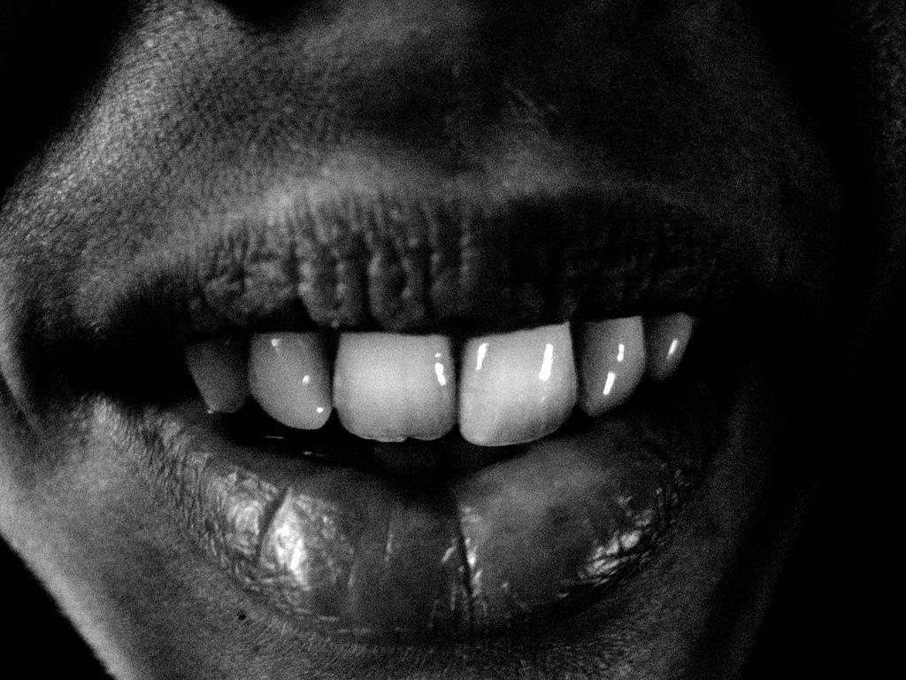 erosão dental