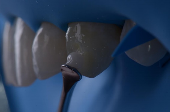 mancha hipoplasica