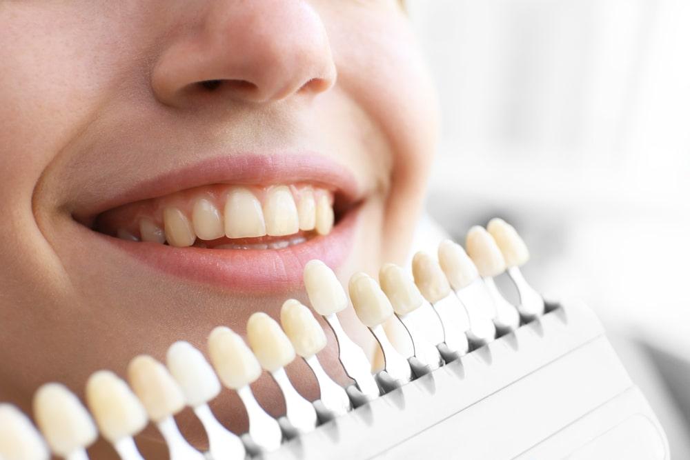 Como fazer seleção de cor em odontologia