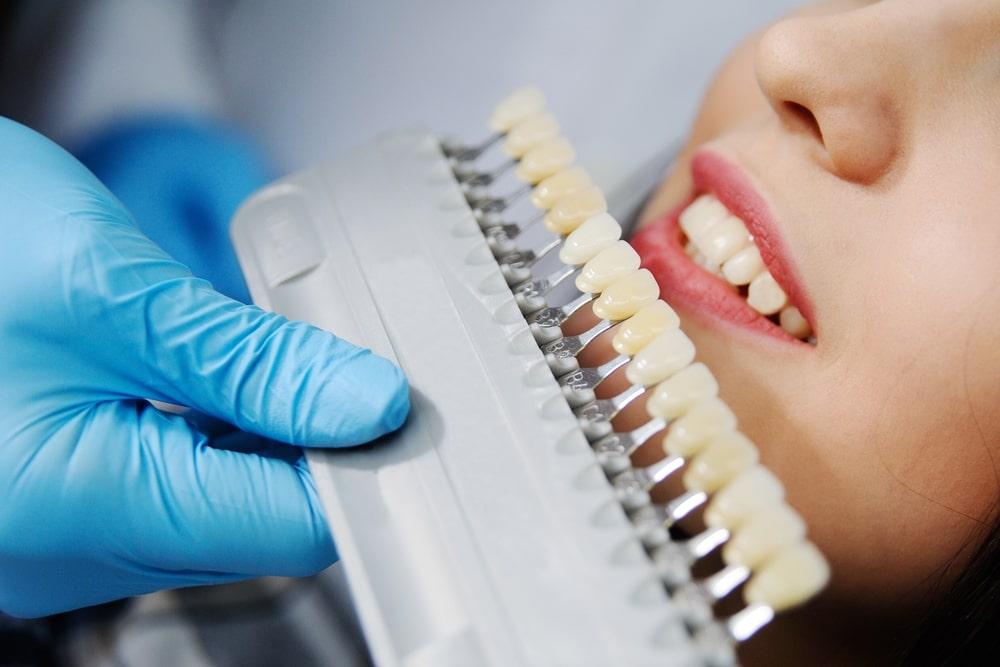 seleção de cor em odontologia