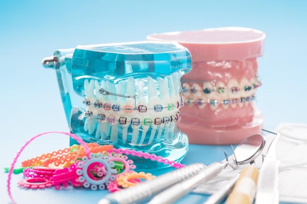 Tipos de braquetes: qual o material ideal para seus pacientes?