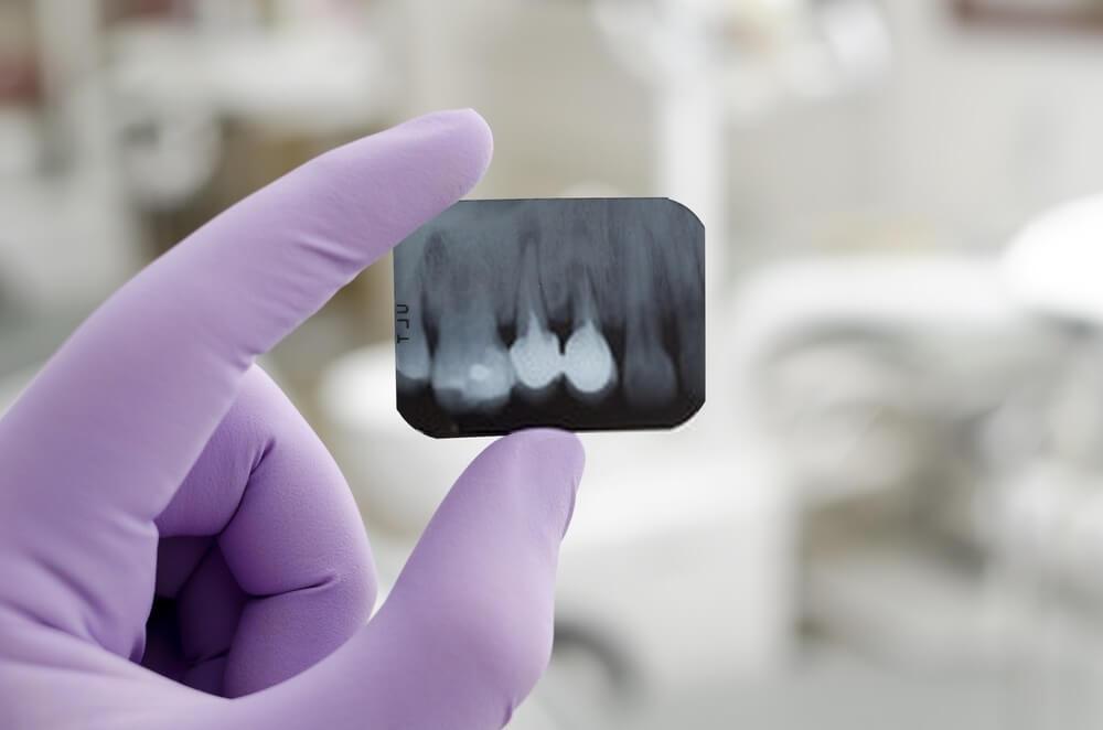 Filme radiográfico odontológico: como escolher?