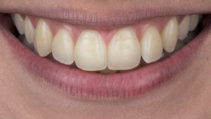 Clareamento dental caseiro Whiteness Perfect