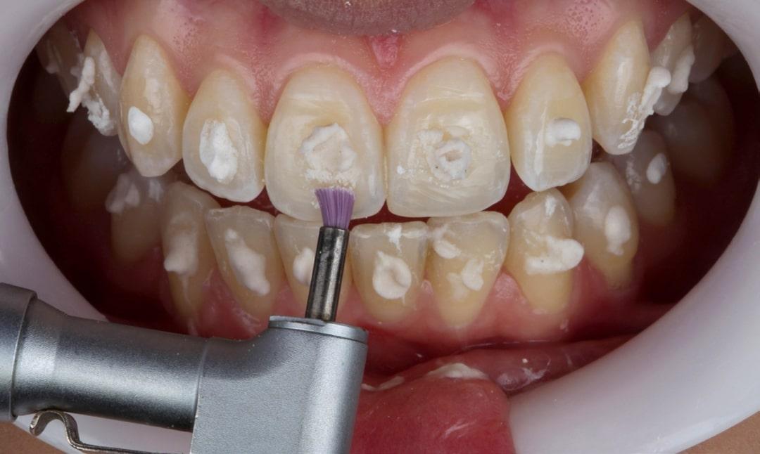 Clareamento dental caseiro - caso clinico fgm
