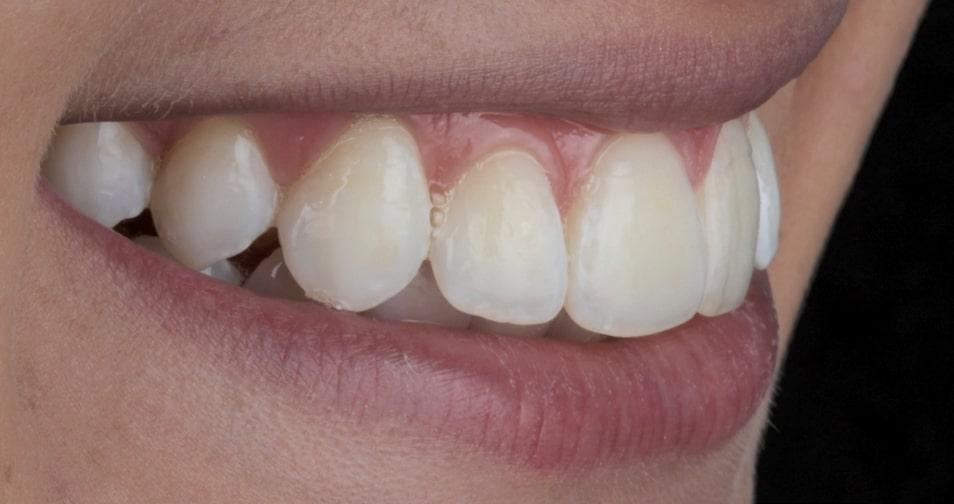 Clareamento dental caseiro