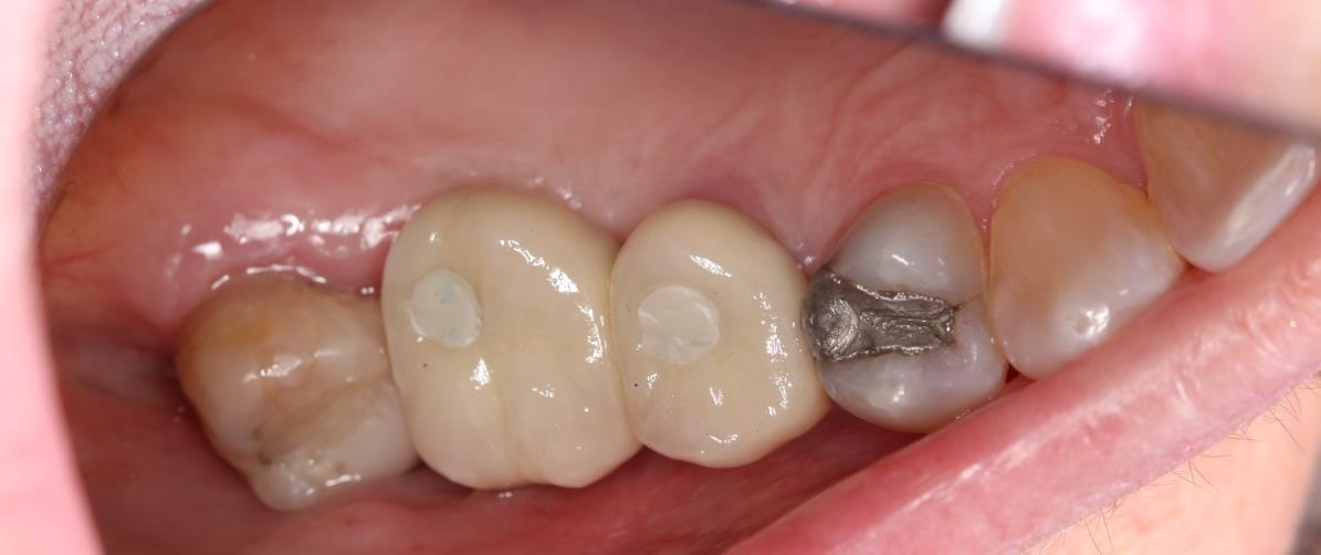 reabilitação de região posterior de maxila - figura 10