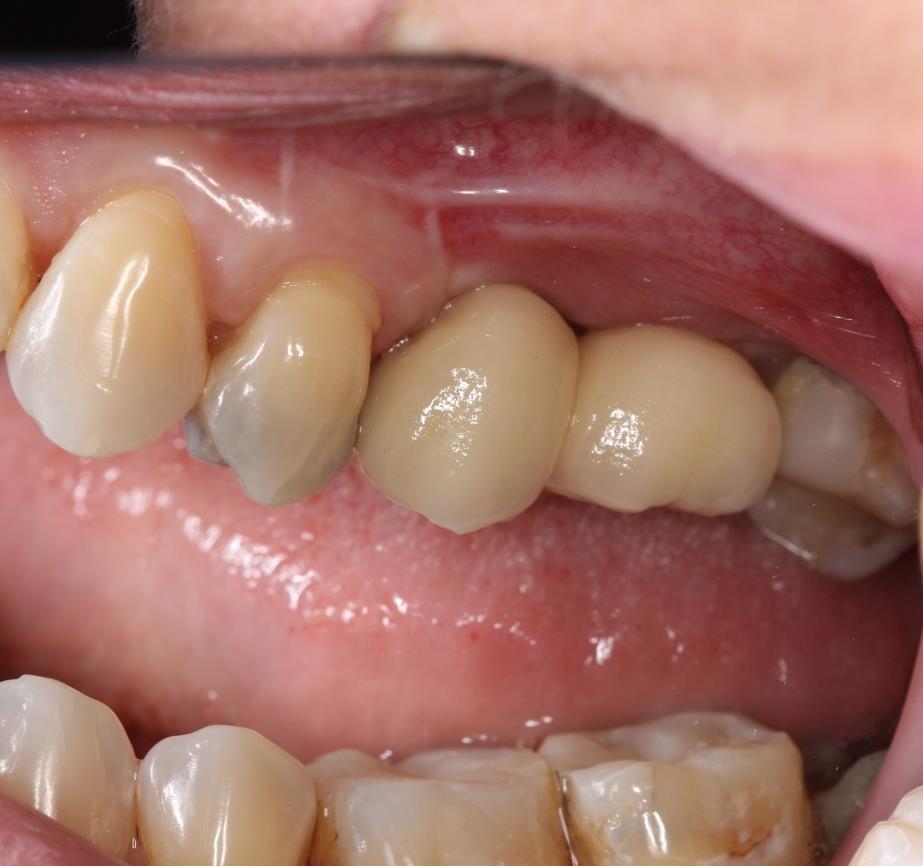 reabilitação de região posterior de maxila - figura 9