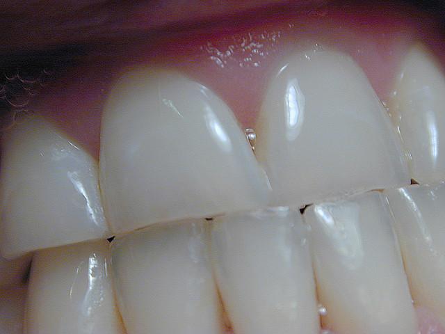 Cientistas criam produto capaz de recuperar o esmalte dos dentes