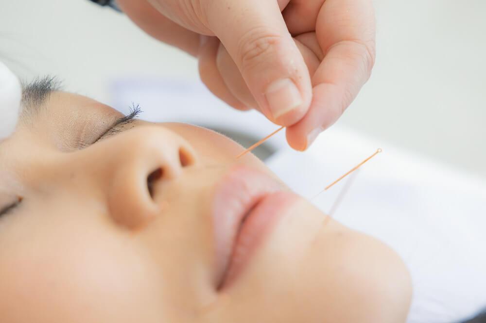 Rosto de mulher asiática com agulhas de acupuntura