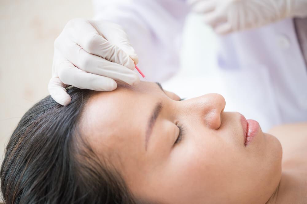 Saiba mais sobre o uso de acupuntura na Odontologia