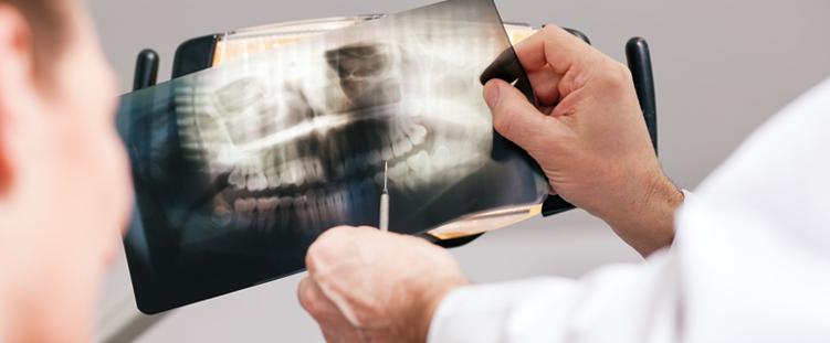 Osteoporose pode fazer os dentes caírem depois dos 40 anos