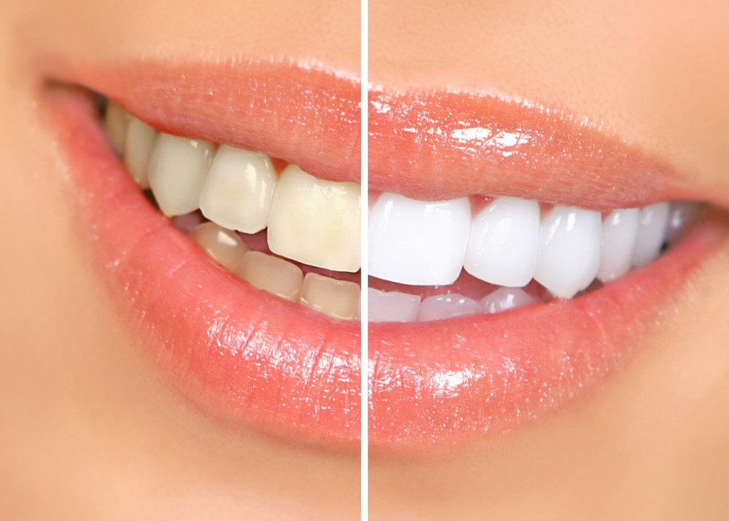 clareamento dental terá prescrição