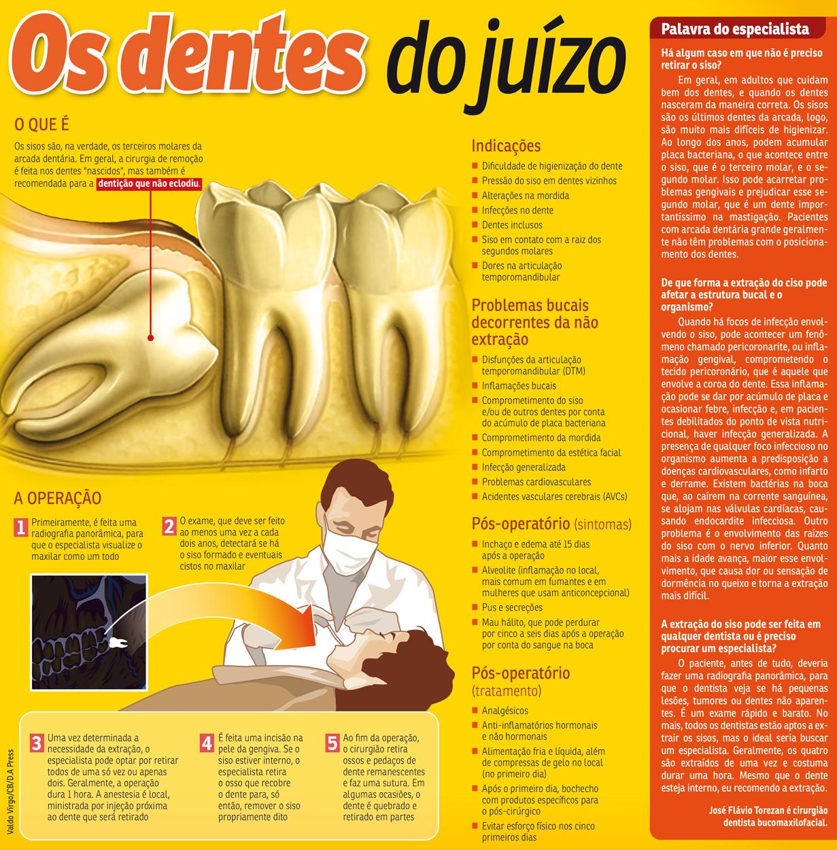 Entenda a importância da extração dos sisos para a saúde bucal
