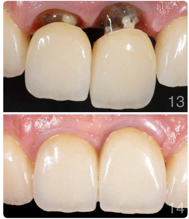 Coroas cerâmicas cimentadas nos dentes através do mesmo cimento resinoso dual, revelando a praticidade do material.