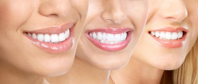 Mau posicionamento dentário pode causar dores e assimetria da face