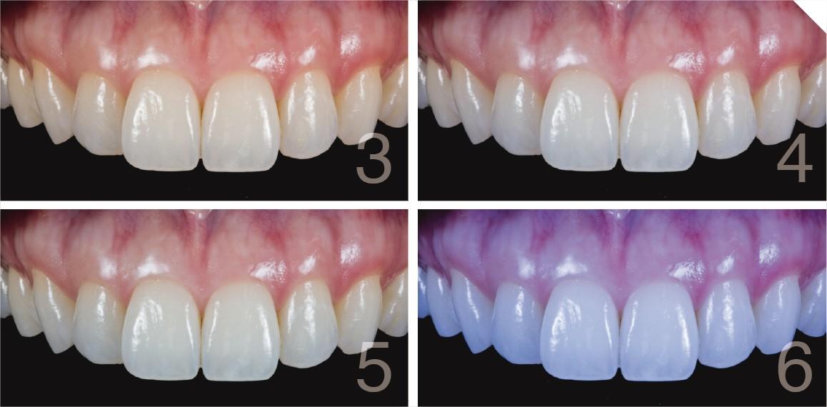 fotos de dentes com flash e diferentes configurações