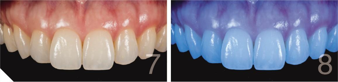 fotos de dentes com flash e diferentes configurações 2