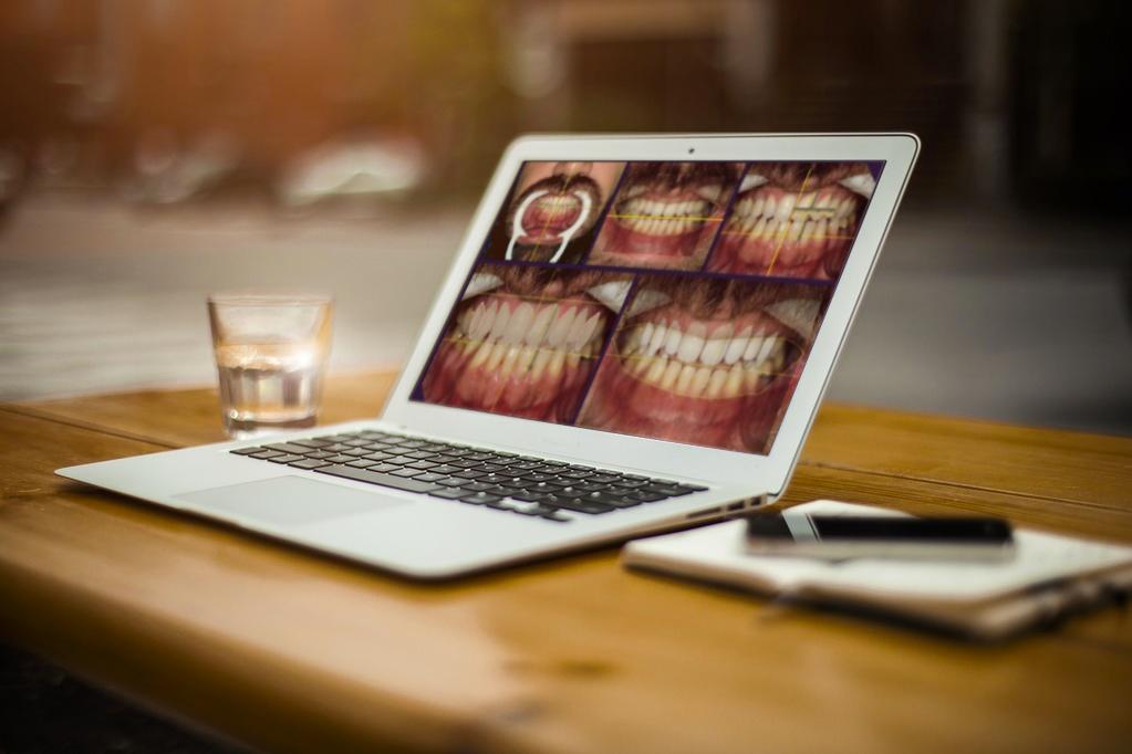 10 passos para fazer um DSD - Desenho Digital do Sorriso