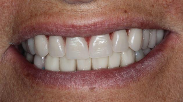 Prova estética dos dentes