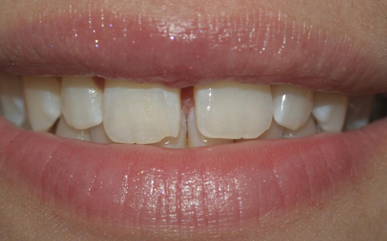 Paciente do sexo feminino, jovem e com a presença de grande diastema entre os elementos 11 e 21. Vista frontal do sorriso.