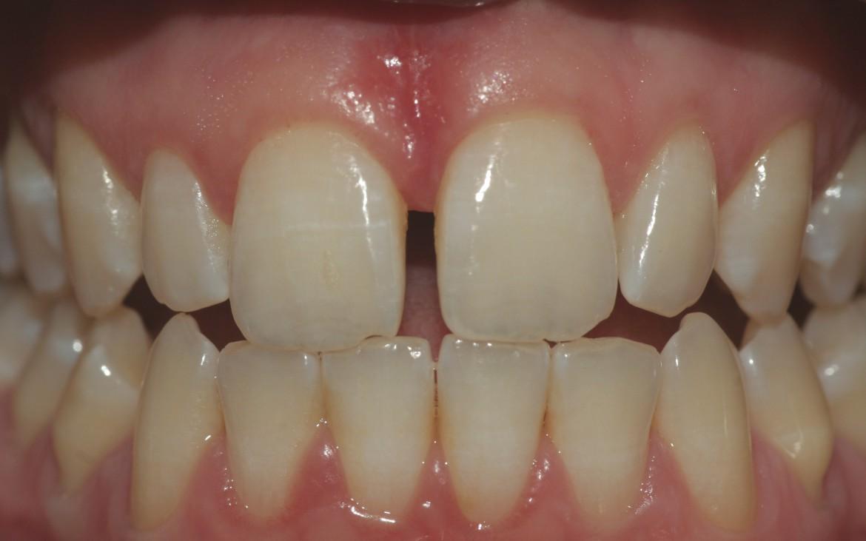 Vista frontal da paciente em oclusão e com lábios e bochechas afastadas.
