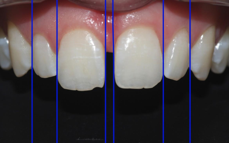 Análise virtual da proporção dental dos incisivos que obedece a norma de estética (proporção áurea). Nesse caso, é inviável a oclusão pura e simples do diastema, sendo necessária a redistribuição do espaço e, a consequente redução do diastema entre os dentes 11 e 21.