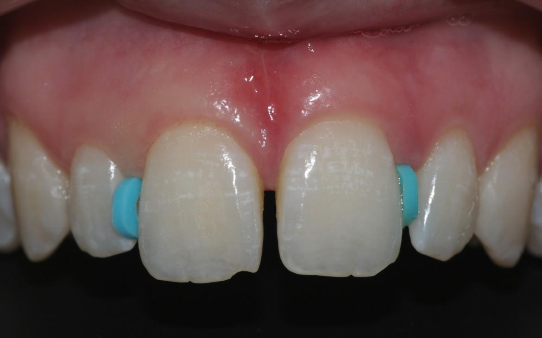 Anéis ortodônticos de borracha com 1,0 mm de espessura posicionado entre os dentes 12-11 e entre 21-22. Após 24 a 48 horas os dentes 11 e 21 migrarão em sentido mesial.