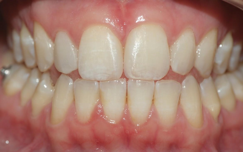 Vista frontal da paciente em oclusão e com lábios e bochechas afastadas, após a conclusão do caso clínico.