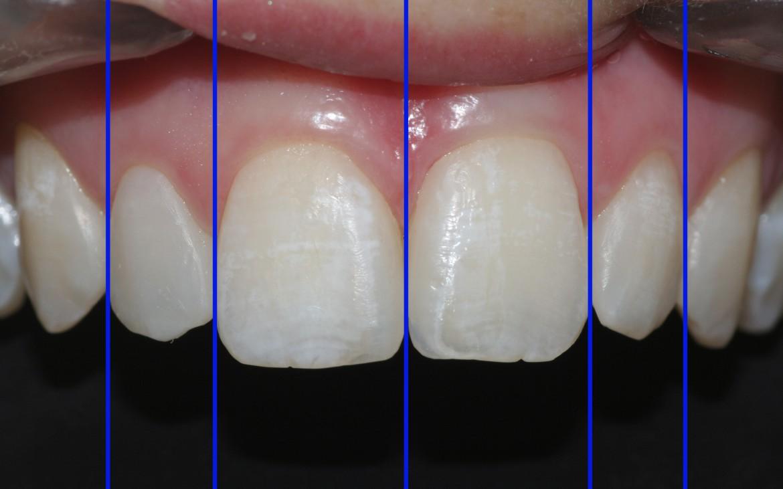 Análise virtual da proporção dental dos incisivos que continua em concordância com a norma de estética (proporção áurea), mesmo após a execução das restaurações. Observe que apesar do aumento na largura dos incisivos superiores, prevalece a harmonizado sorriso.