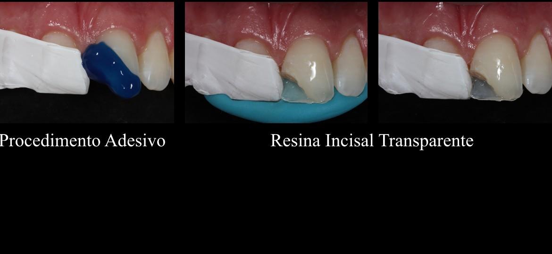 Procedimento adesivo / Resina incisal transparente pela palatina