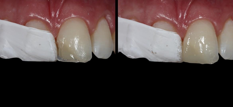 Resina A2 dentina / Resina A2 esmalte