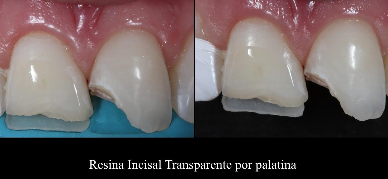Resina incisal transparente pela palatina