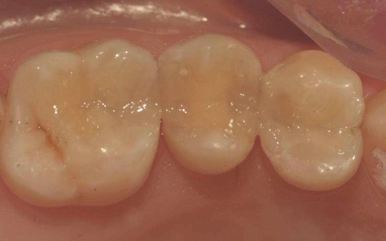 Caso concluído após o polimento e aplicação do selante de superfície para resina composta.