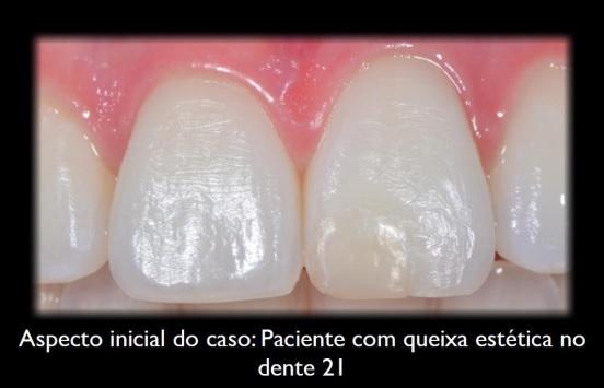 Aspecto inicial do caso: Paciente com queixa estética no dente 21