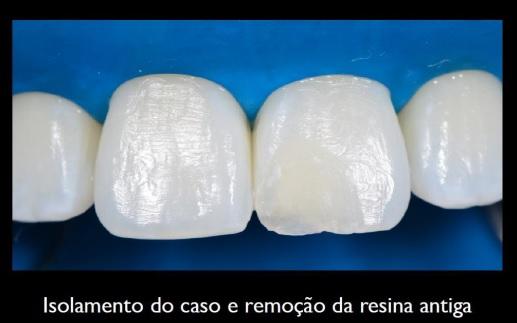Isolamento do caso e remoção da resina antiga