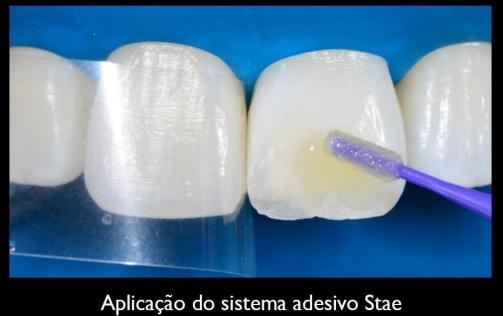 Aplicação do sistema adesivo Stae