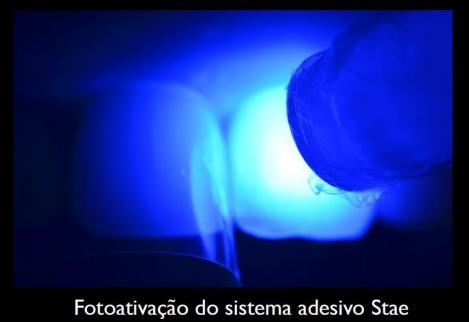 Fotoativação do sistema adesivo Stae