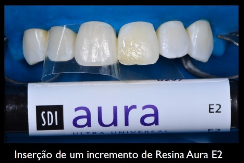 Inserção de um incremento de Resina Aura E2