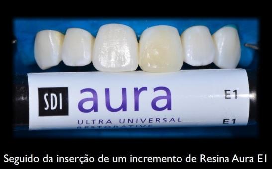 Seguido da inserção de um incremento de Resina Aura E1