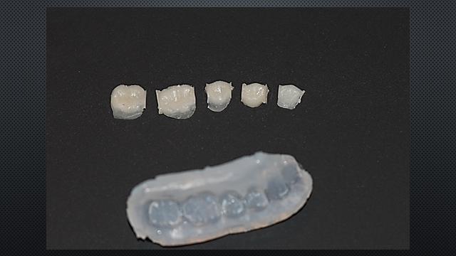 Overlays retiradas da guia de silicone - separação imediata das peças.
