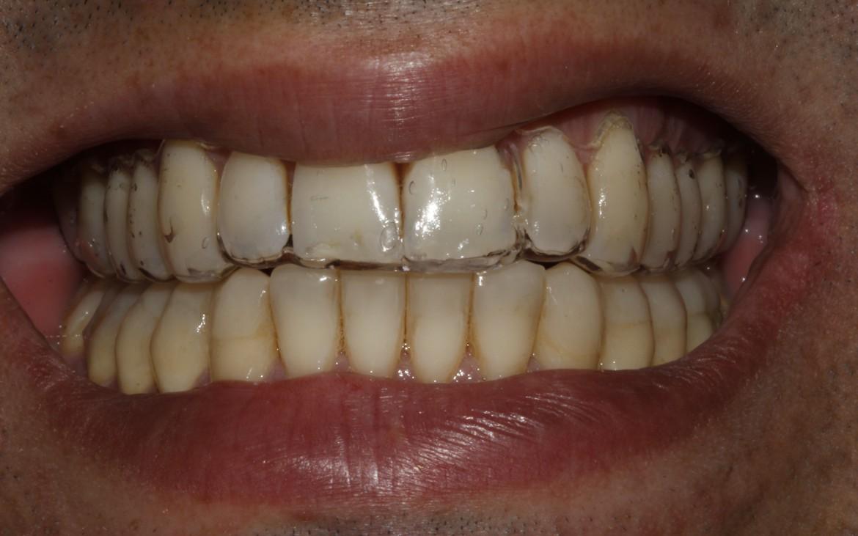 Reabilitação oclusal finalizada (cor A2) – dentes inferiores.