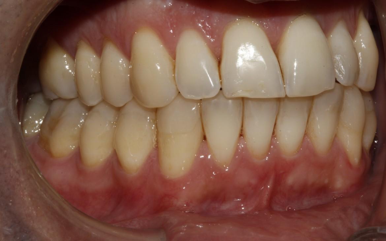 Vista lateral direita - caninos e molares corrigidos na relação oclusal classe I de angle.